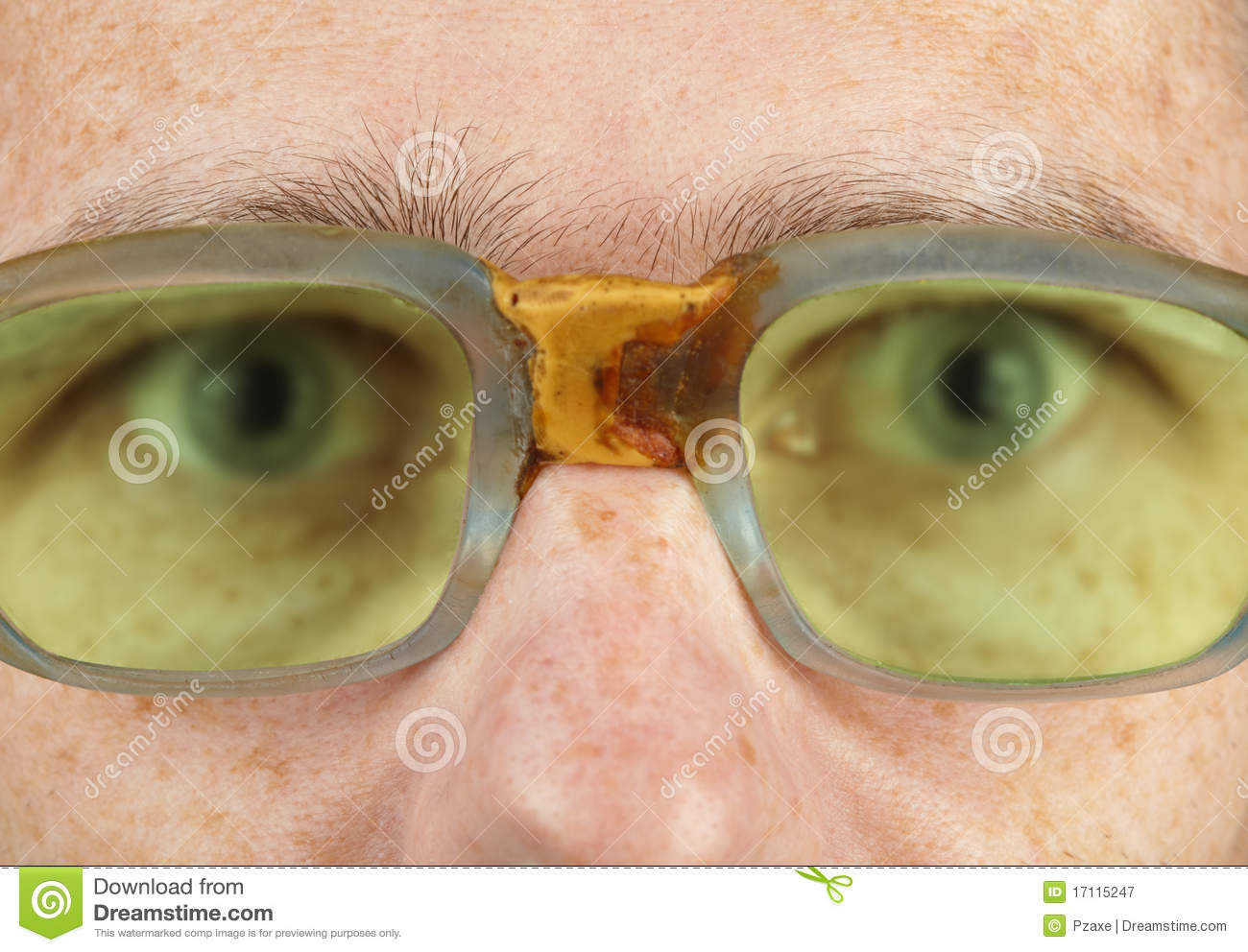 Person In Old Bad Spectacles With Poor Eyesight Stock ...