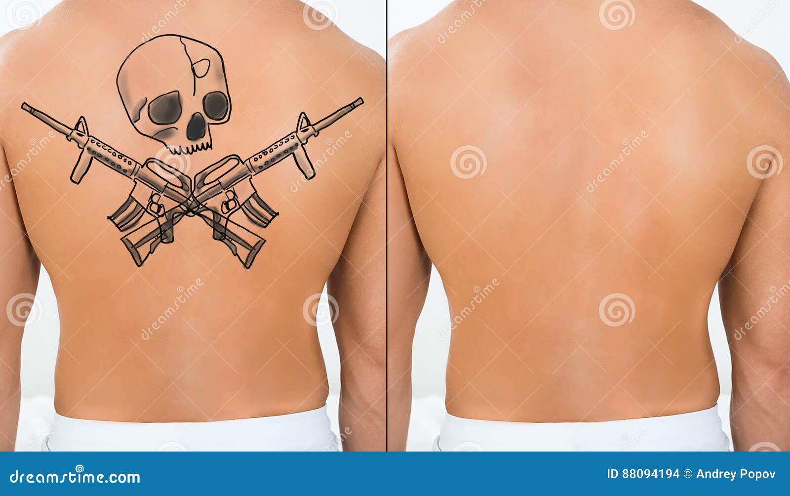 Person Showing Laser Tattoo Removal behandling på baksida