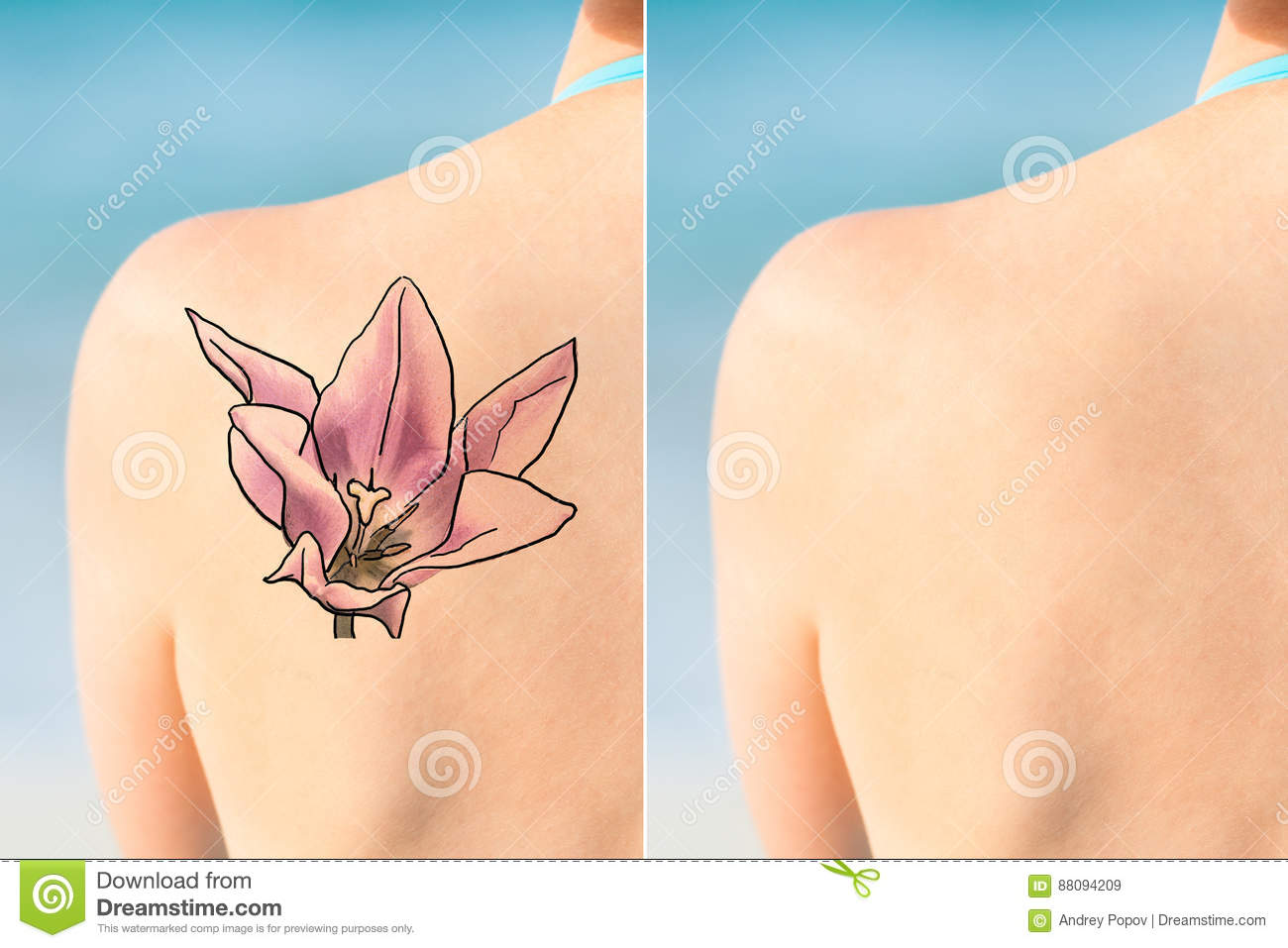 Person Showing Laser Tattoo Removal-Behandlung auf Schulter
