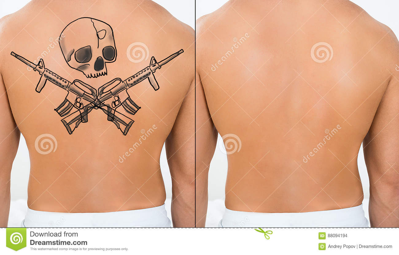 Person Showing Laser Tattoo Removal Treatment On Back