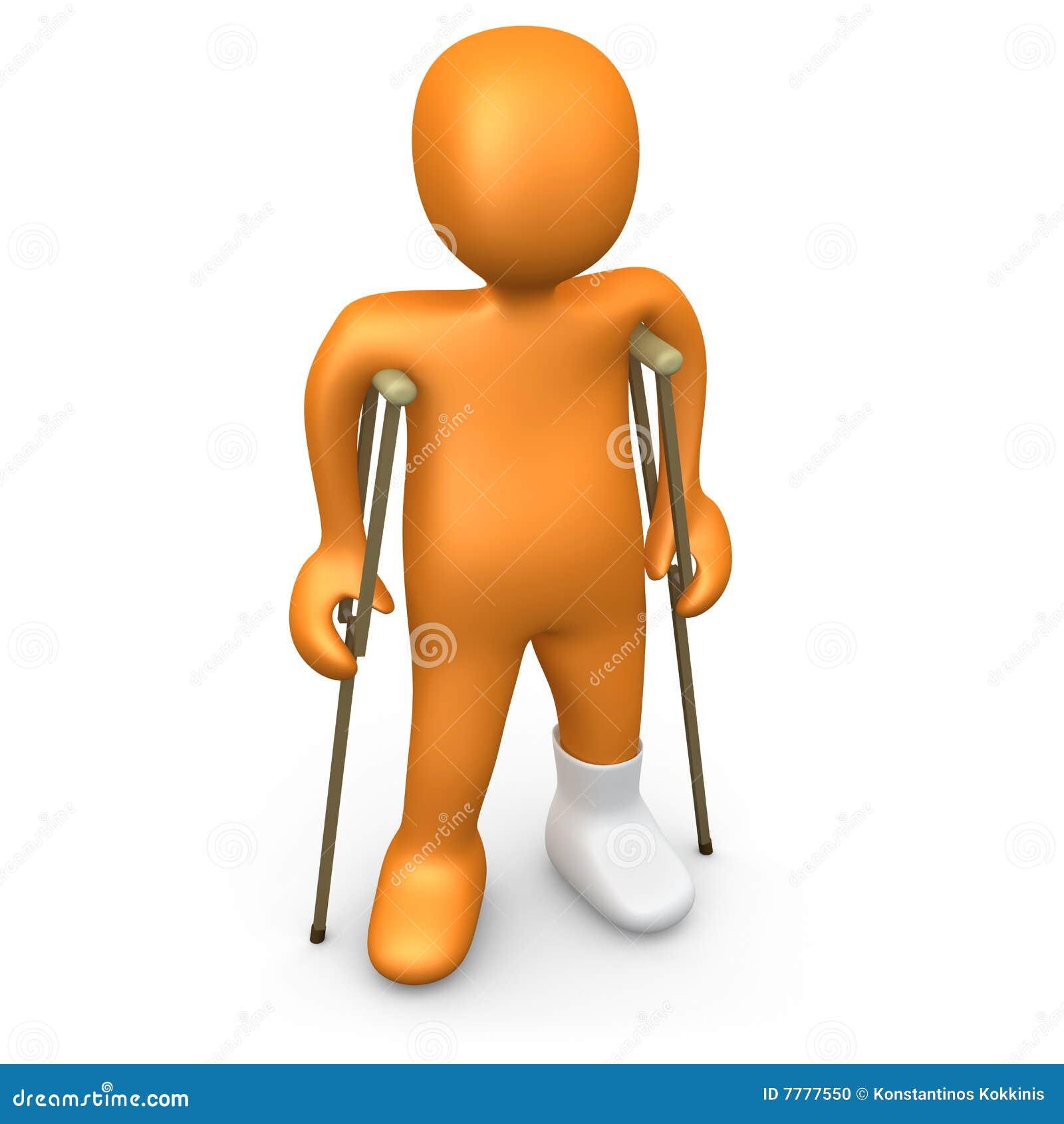 persona con el pie quebrado stock de ilustración ilustración de