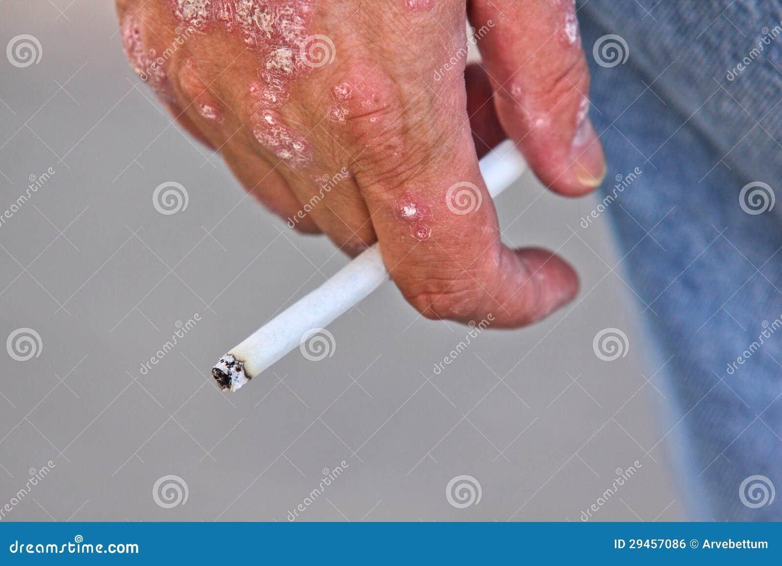 Eczema su mani a diabete