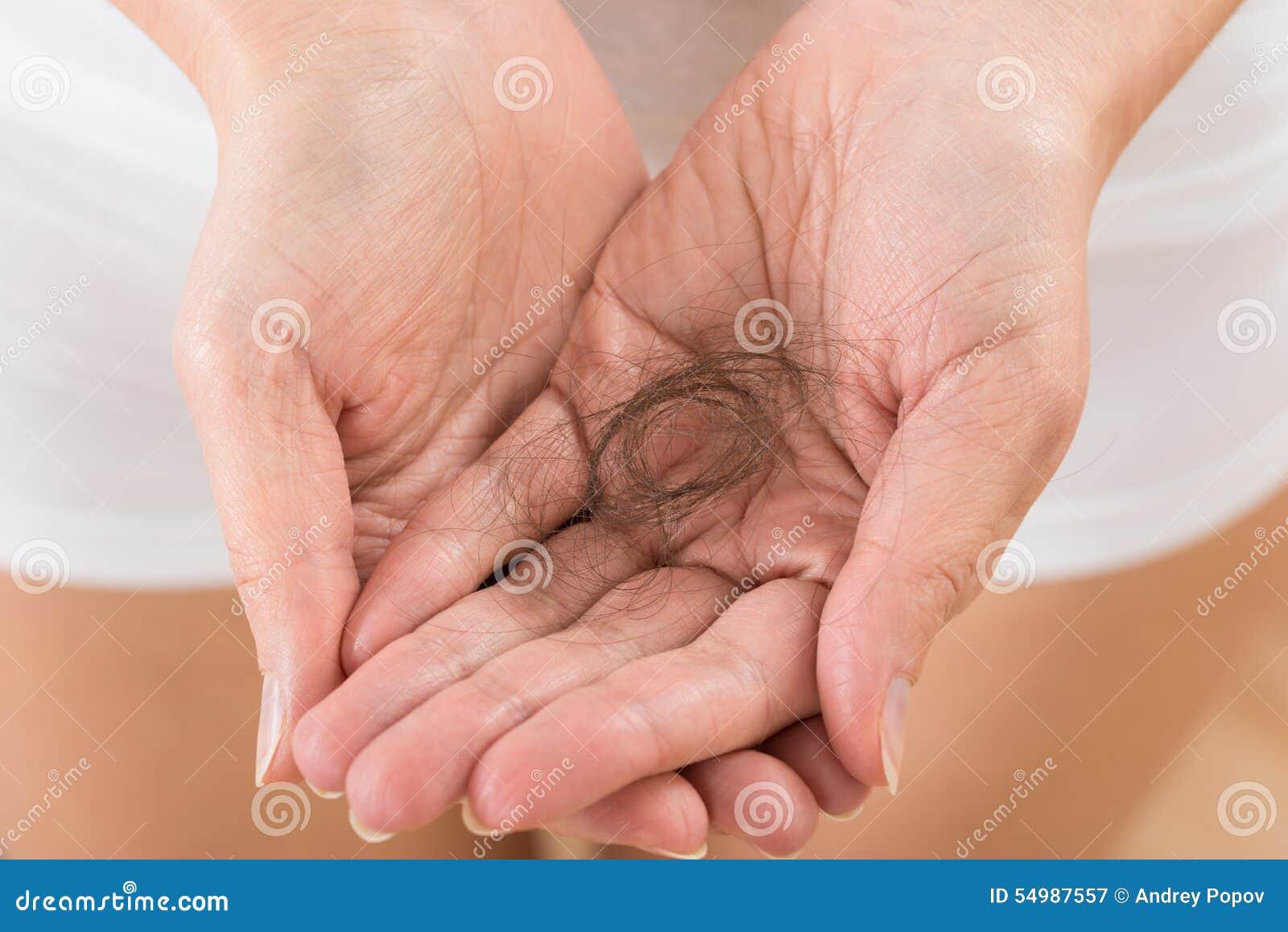 Personhand med förlusthår