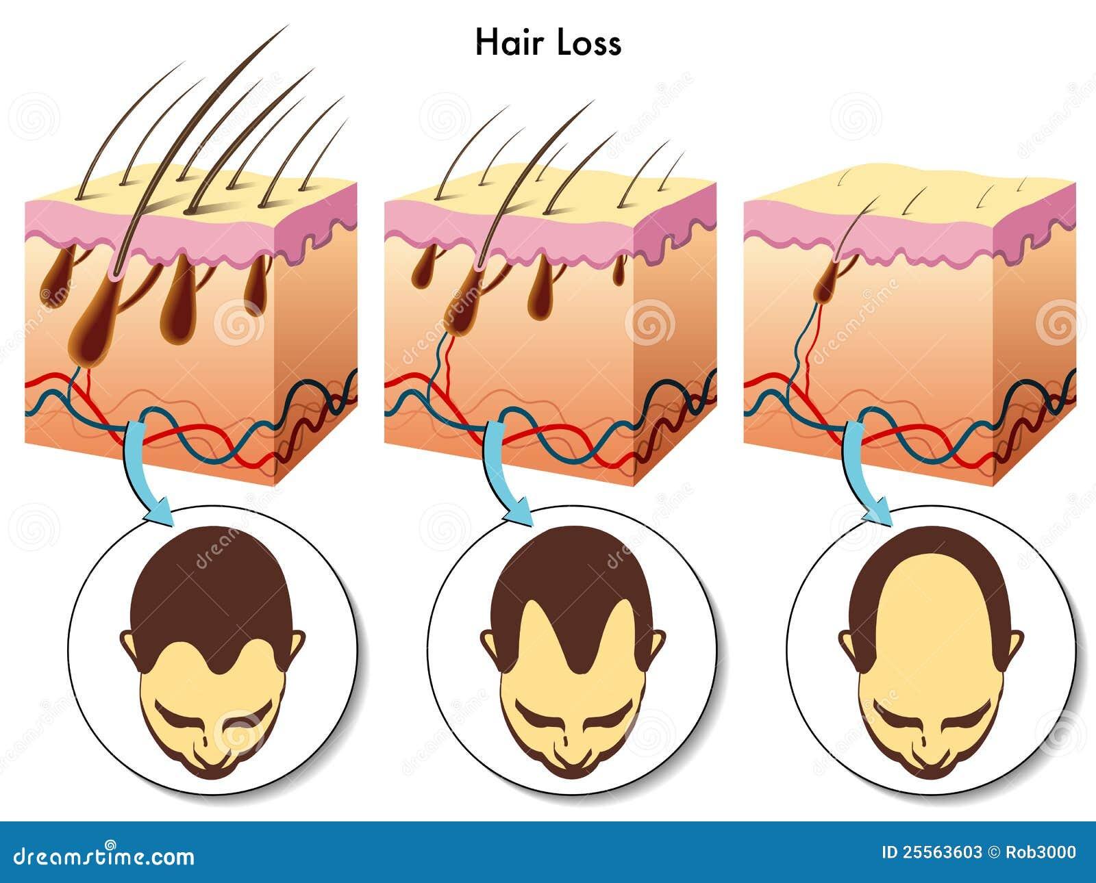Perte de cheveu