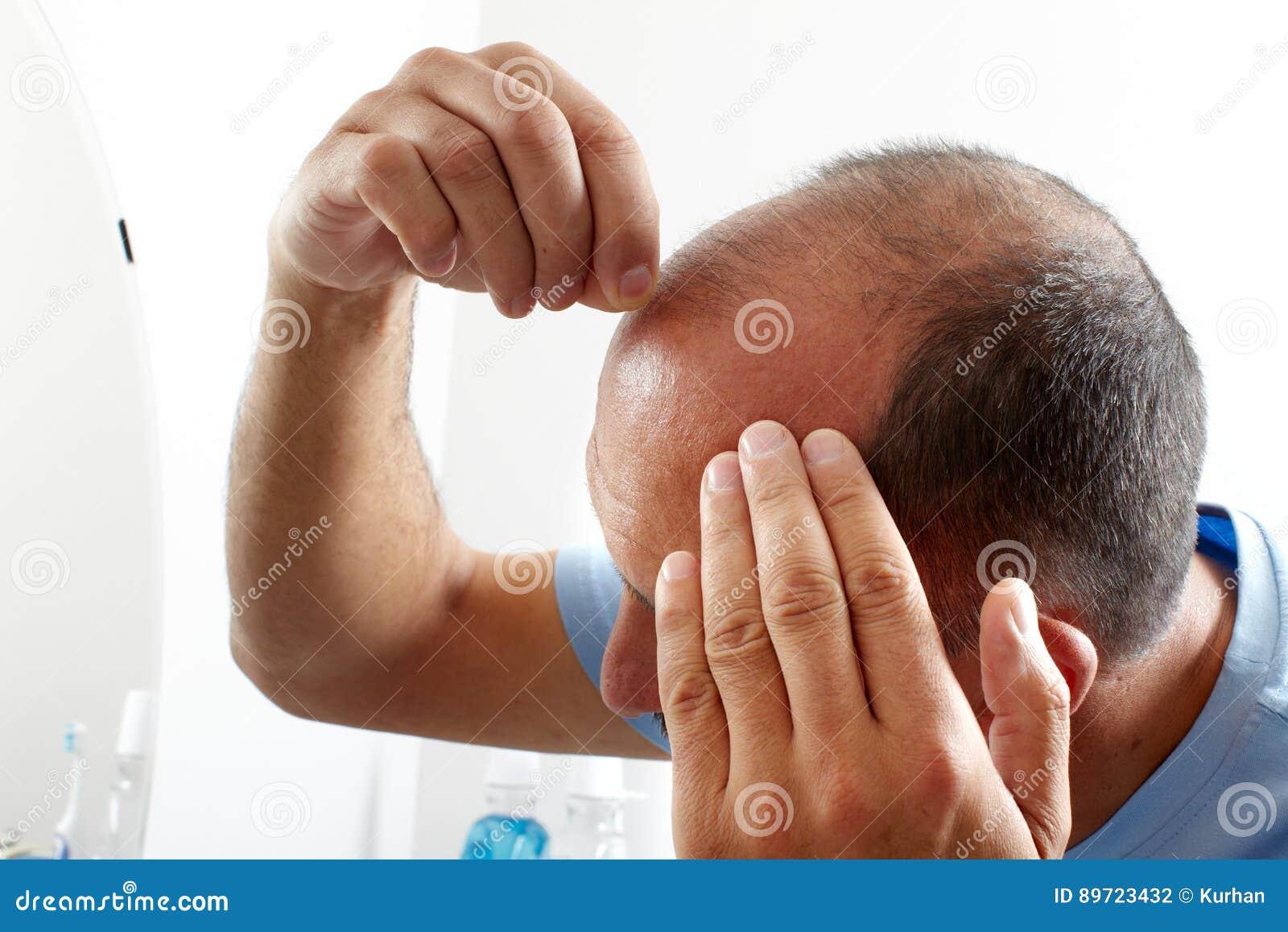 Perte des cheveux