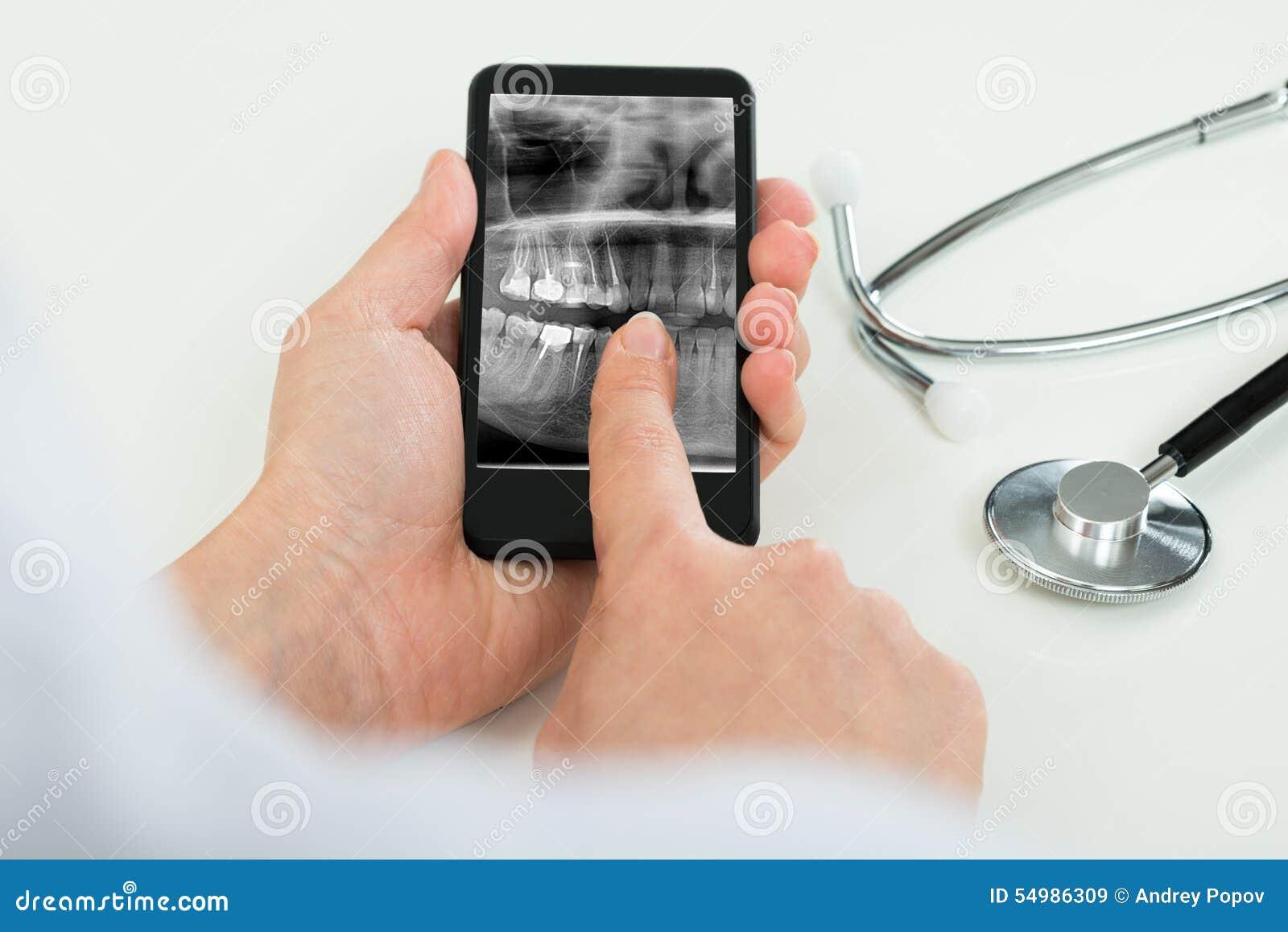 Pessoa com o filme de raio X dental no telefone celular