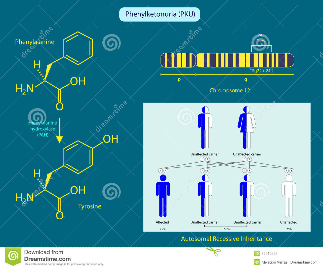 characteristics of phenylketonuria Phenylketonuria (pku), an autosomal recessive disease, is the most common  inborn error of amino acid metabolism in caucasians, affecting 1/10,000.