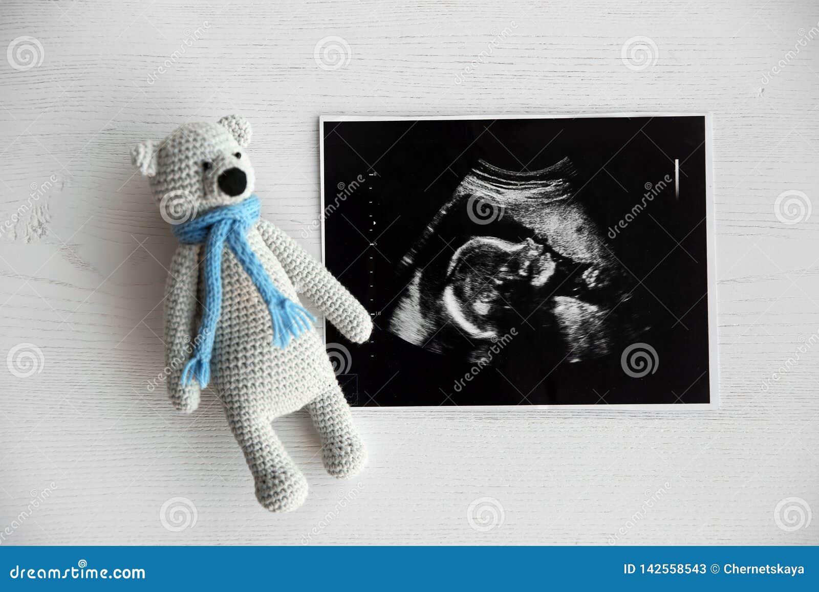 Photo d ultrason de bébé et jouet sur le fond en bois