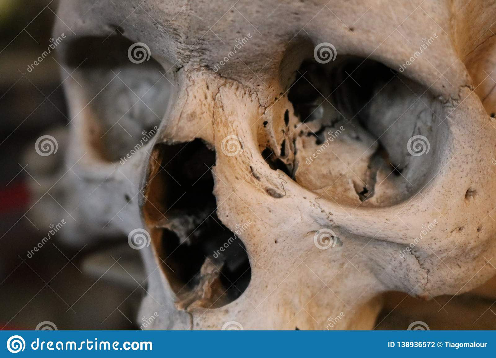 Photo of A Human Skull Fractured