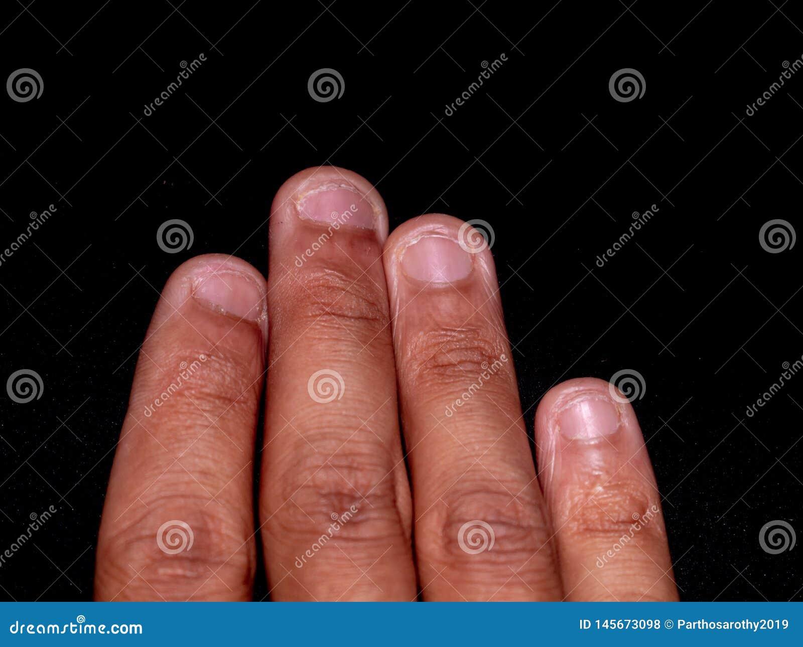 A photo of nails cut by teeth. Nail biting