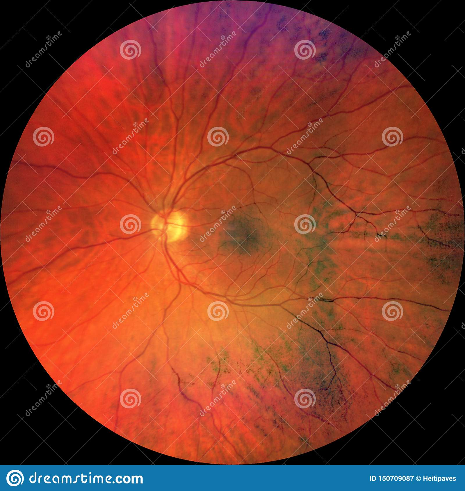Photograph Of The Fundus Oculi Stock Image - Image of disk..