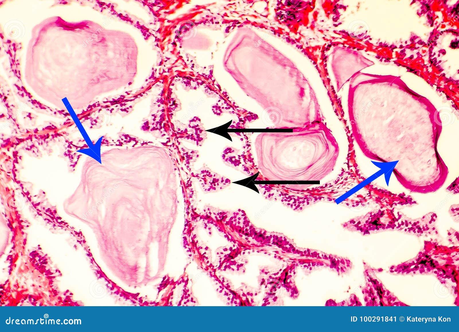 Photomicrograph of prostate hyperplasia