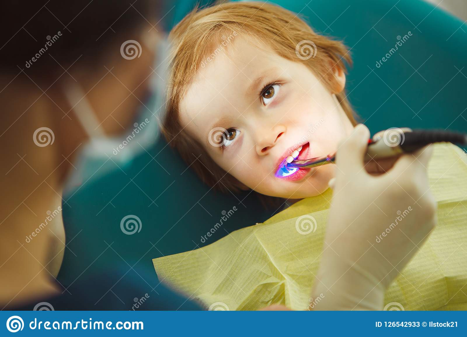 Photopolymer seal child, pediatric dentistry without pain