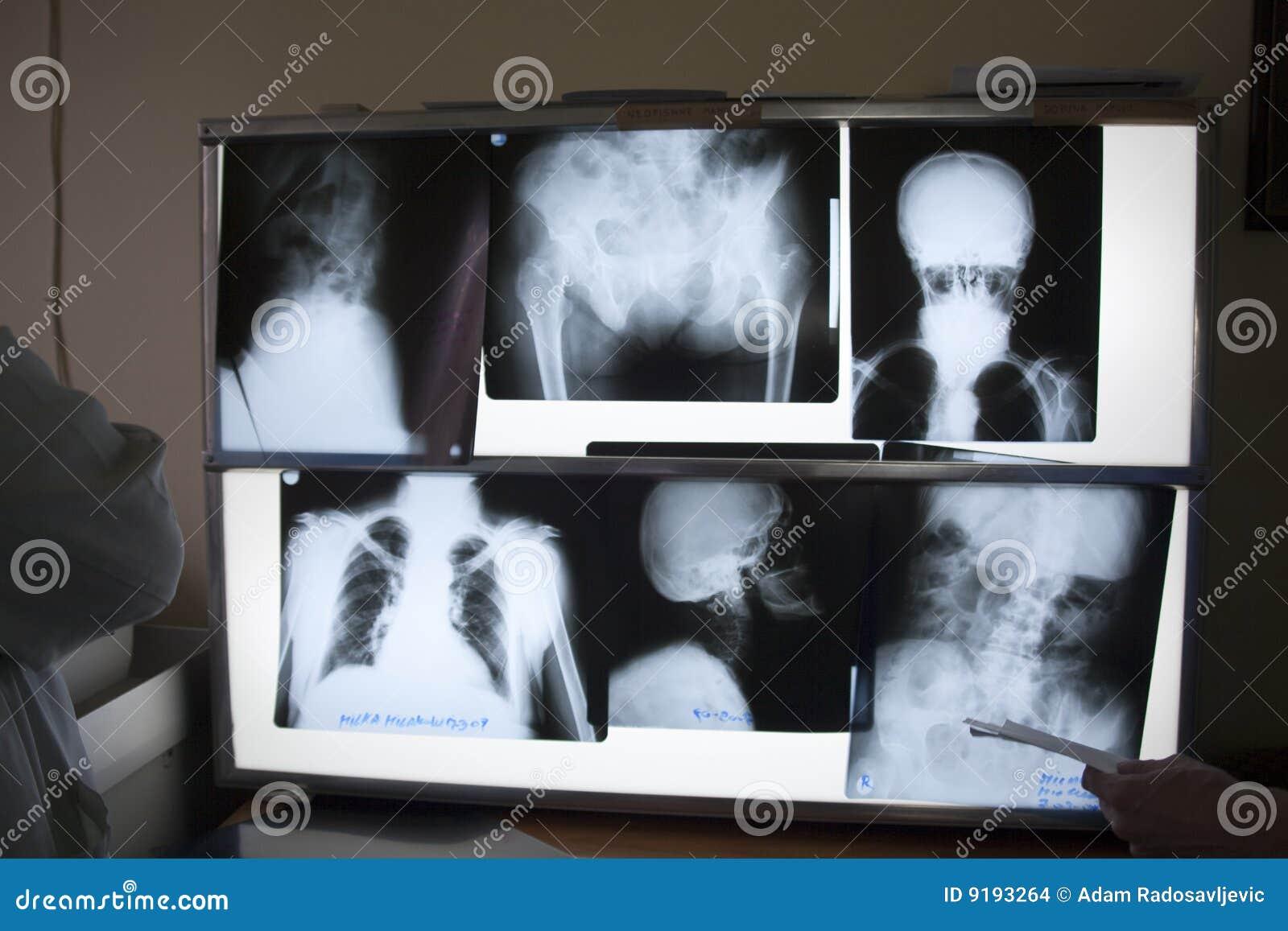 Photos de rayon X