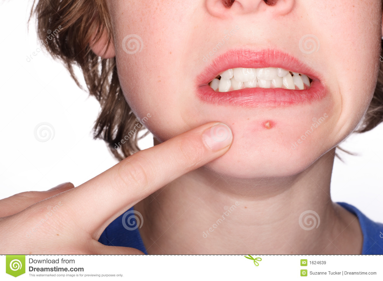 Picking at a Pimple