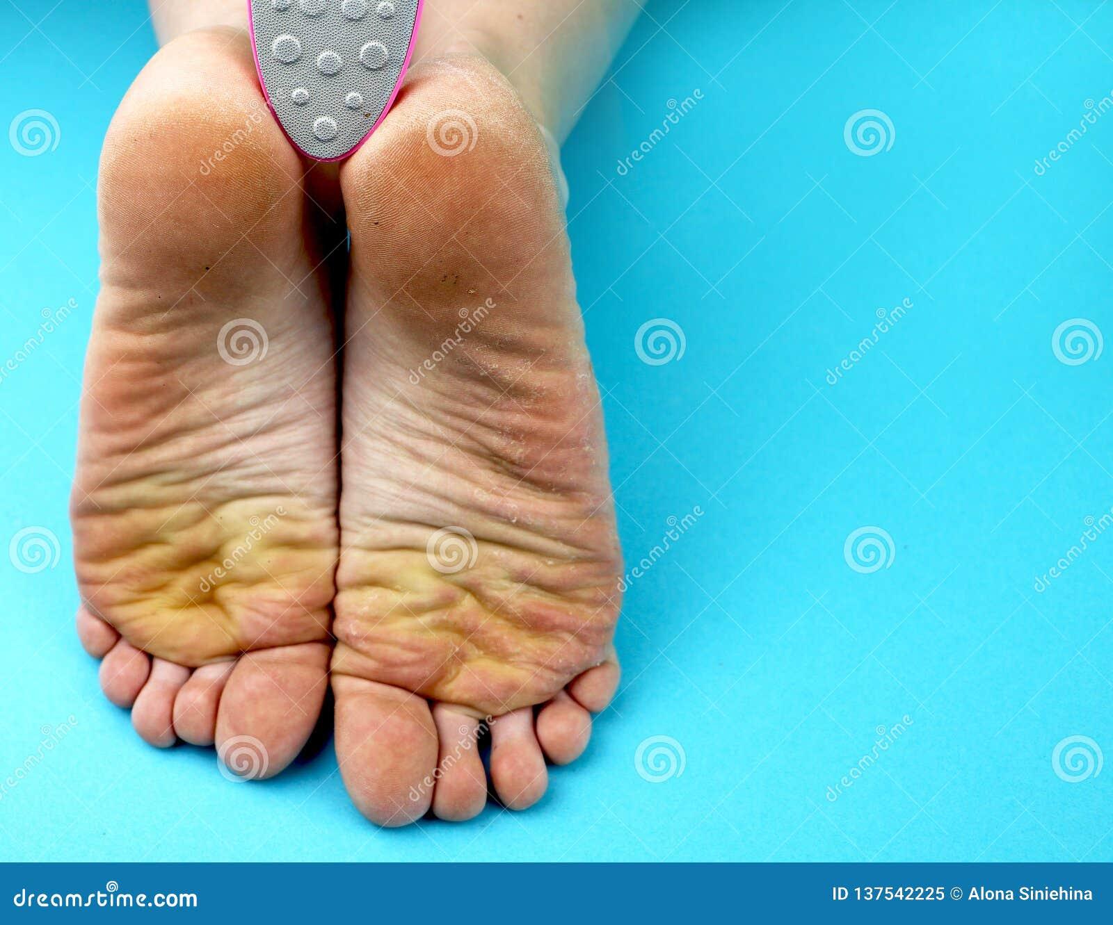 Pieds de pied de nettoyage avec une scie ou une brosse Nettoyage des pieds du champignon