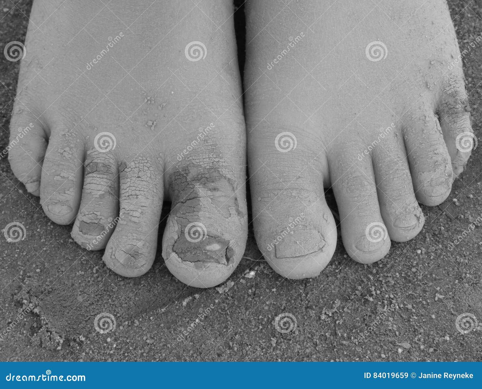 Pieds et orteils boueux de childs en noir et blanc