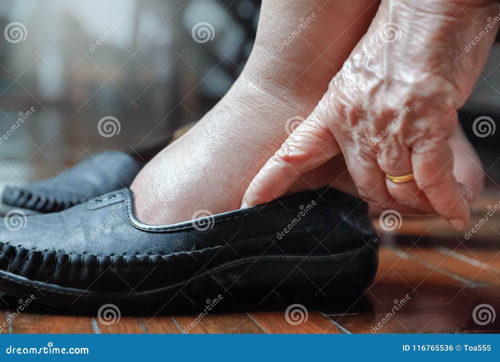 Pieds Mettant Chaussures Gonflés Photo Stock Par Femme Agée Sur Des kXZTwiOPu