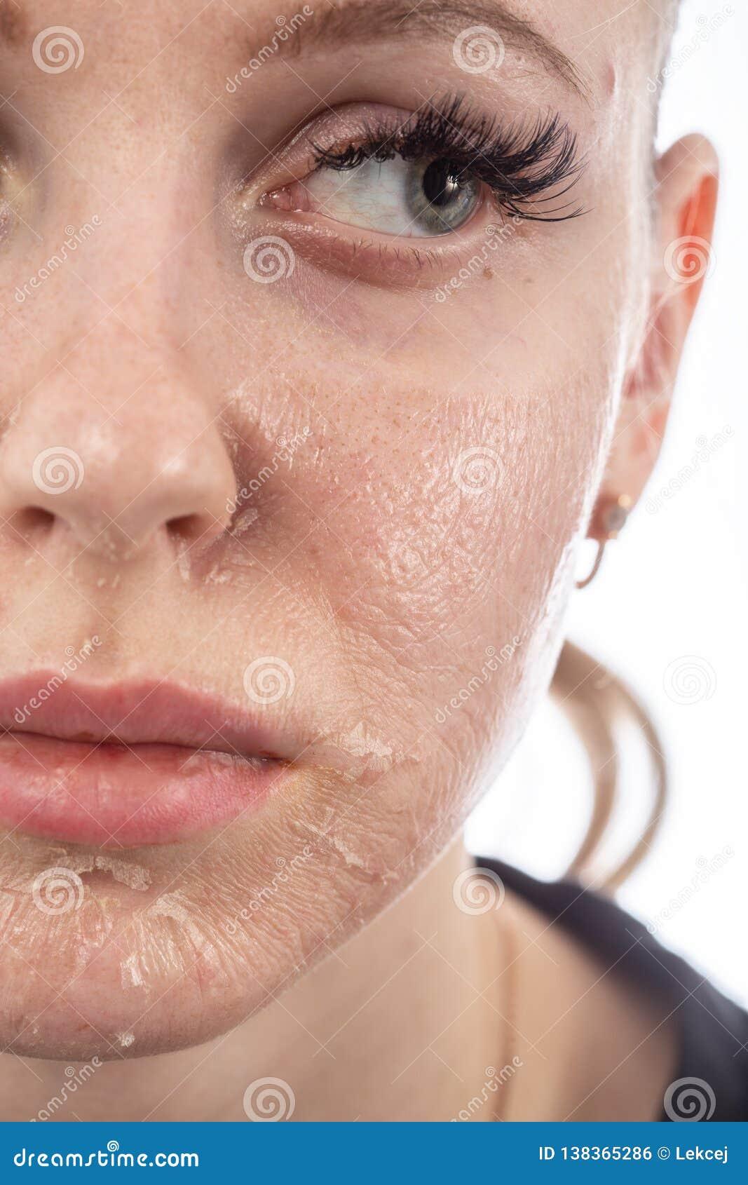 pelar la piel dela cara