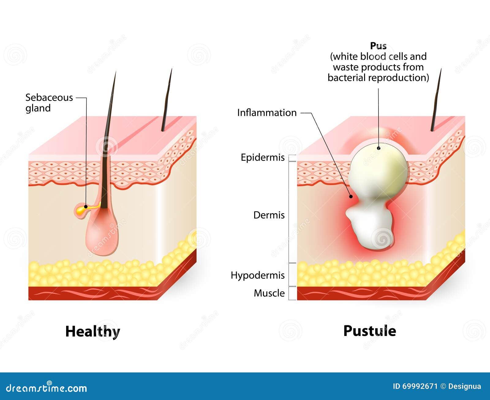 acnes symptomen
