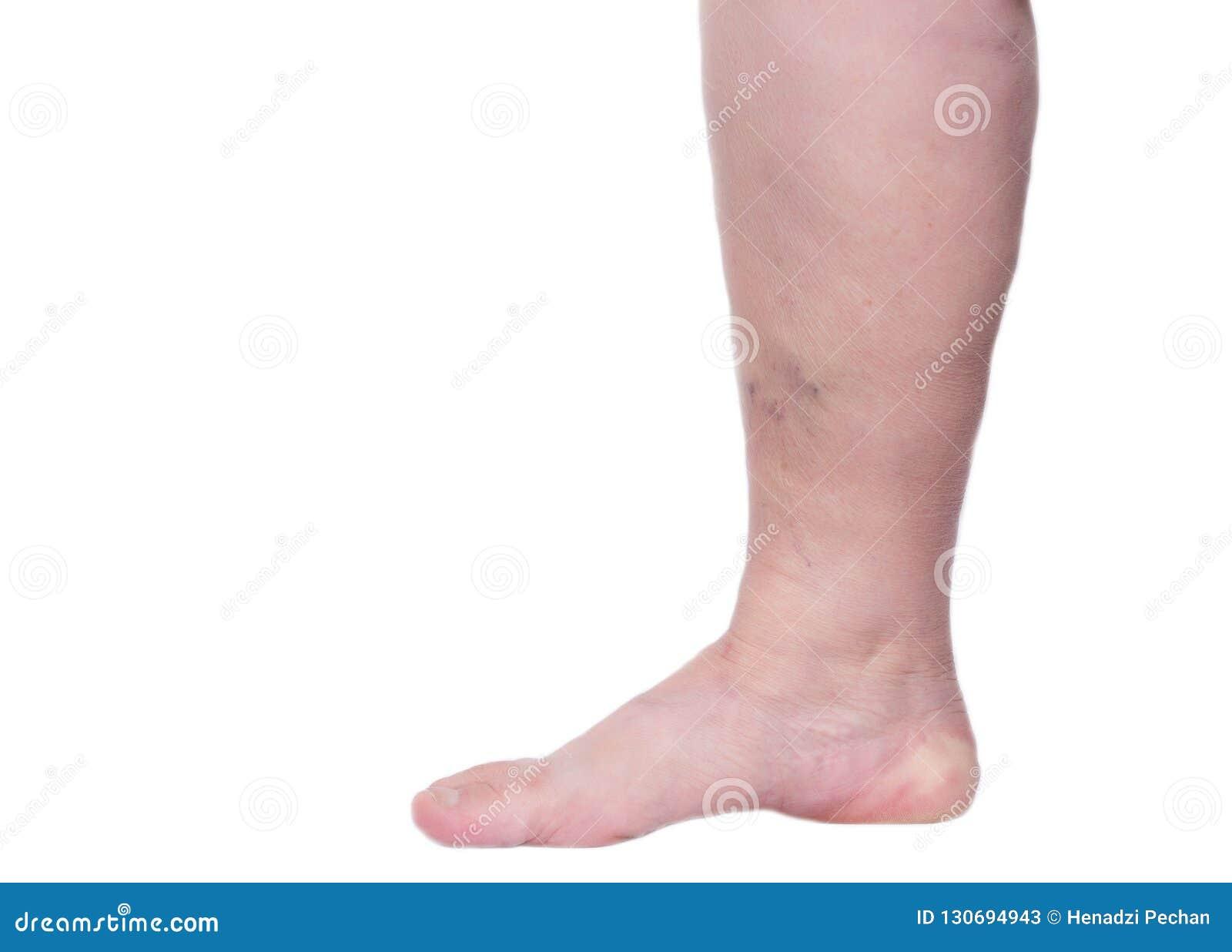 trombosis en varices