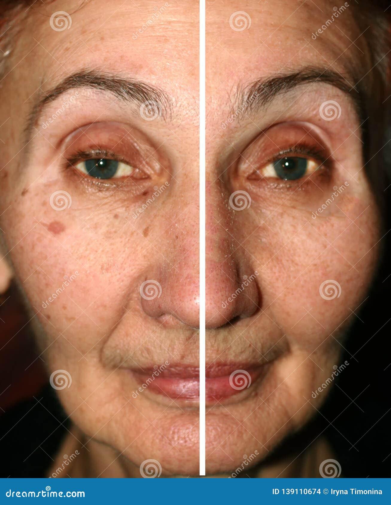 Consider, nasolabial fold facial