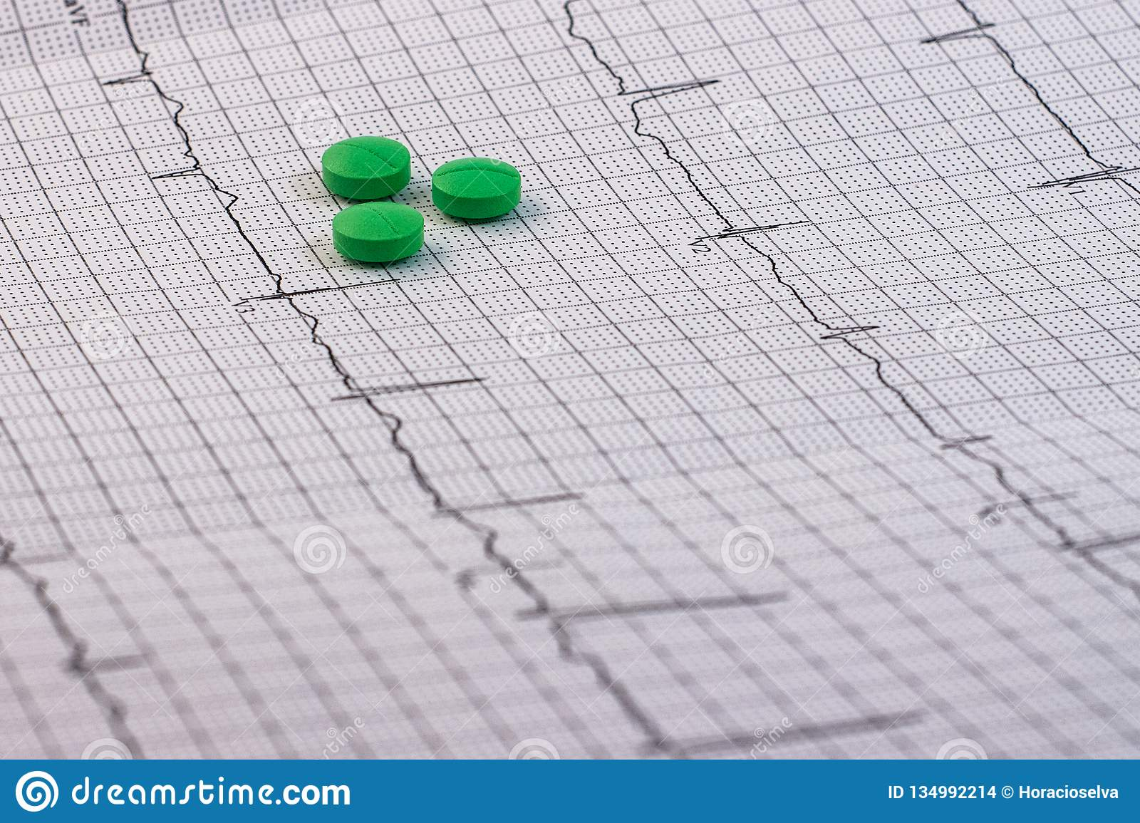 Pills and medicines of green color on an electrocardiogram