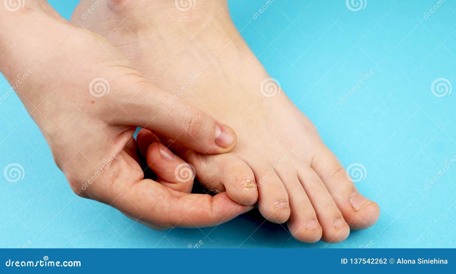 Pilz der Fußnahaufnahme, auf blauem Hintergrund Die Konzeptdermatologie, -behandlung pilzartig und -Mykosen in den Menschen