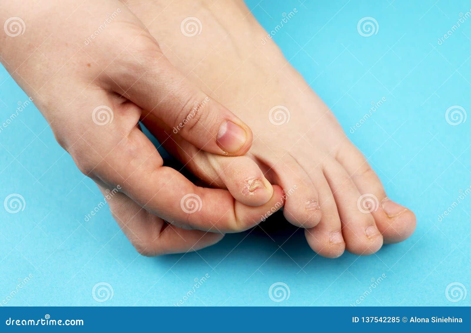 Pilz der Fußnahaufnahme, lokalisiert auf blauem Hintergrund Die Konzeptdermatologie, -behandlung pilzartig und -Mykosen in den Me