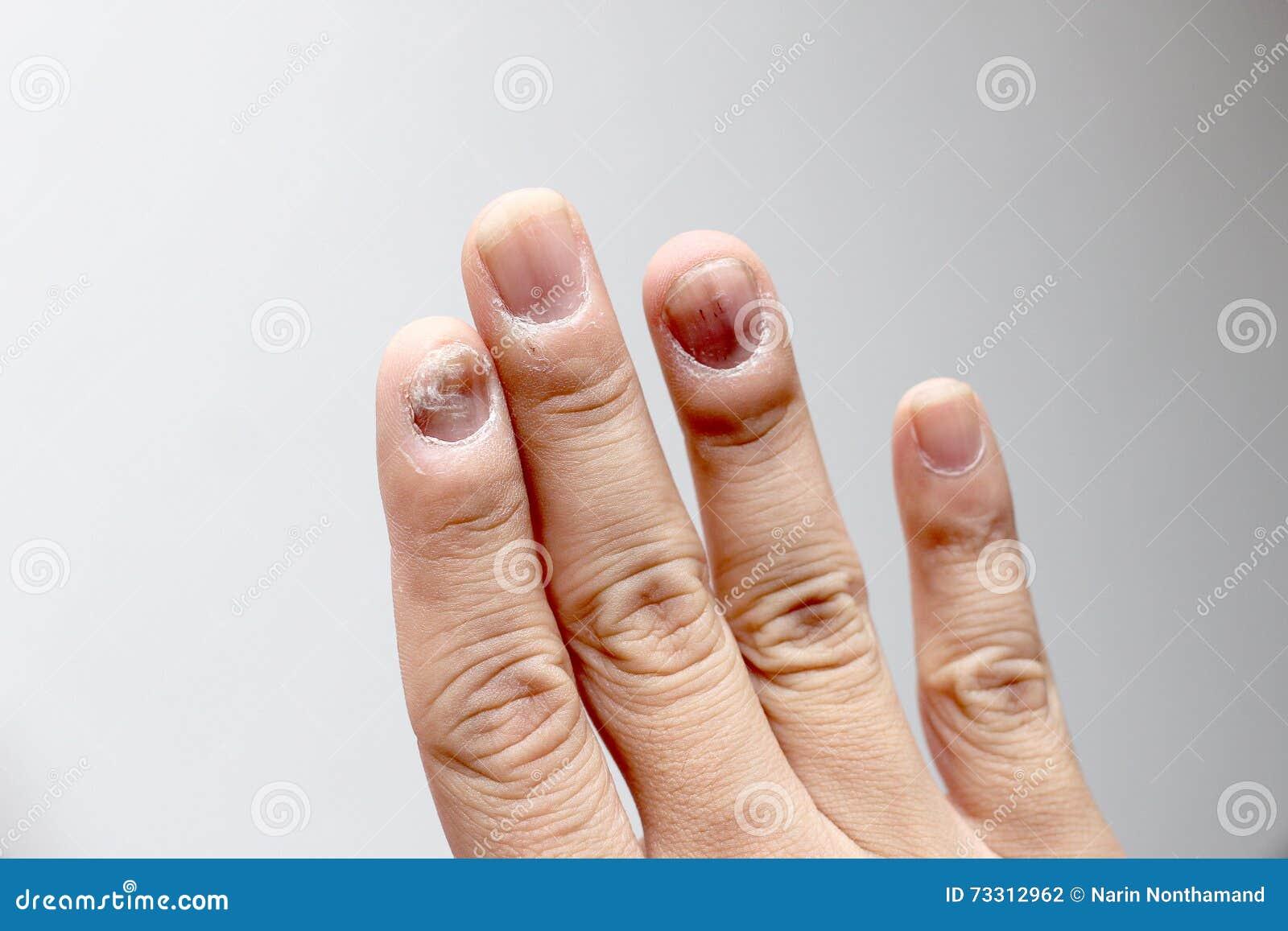 Infektion i finger