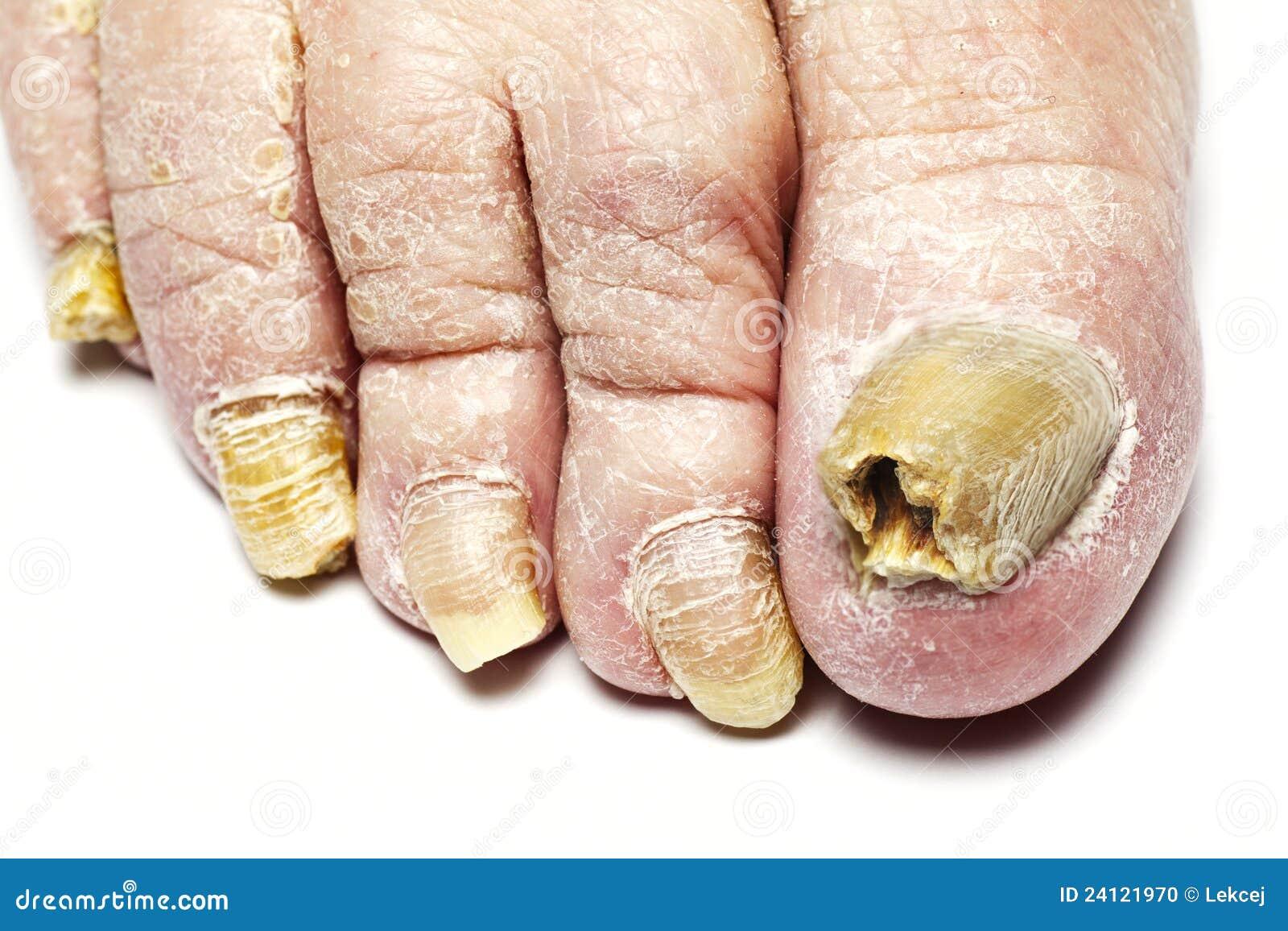 pilzartige nagel infektion stockfoto bild von medizin 24121970. Black Bedroom Furniture Sets. Home Design Ideas