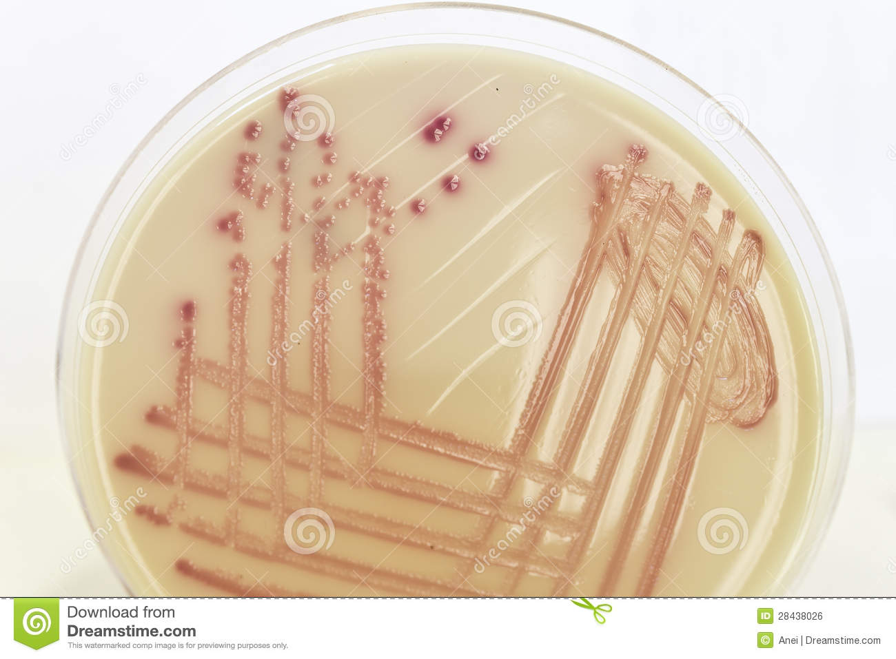 Pink Bacterial Culture On Colorless Colored Agar Royalty Free ...