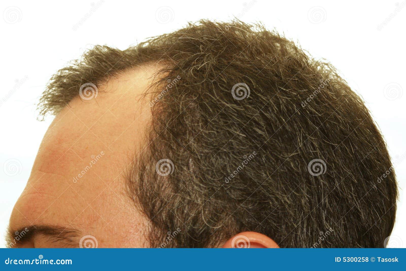 Pista Balding