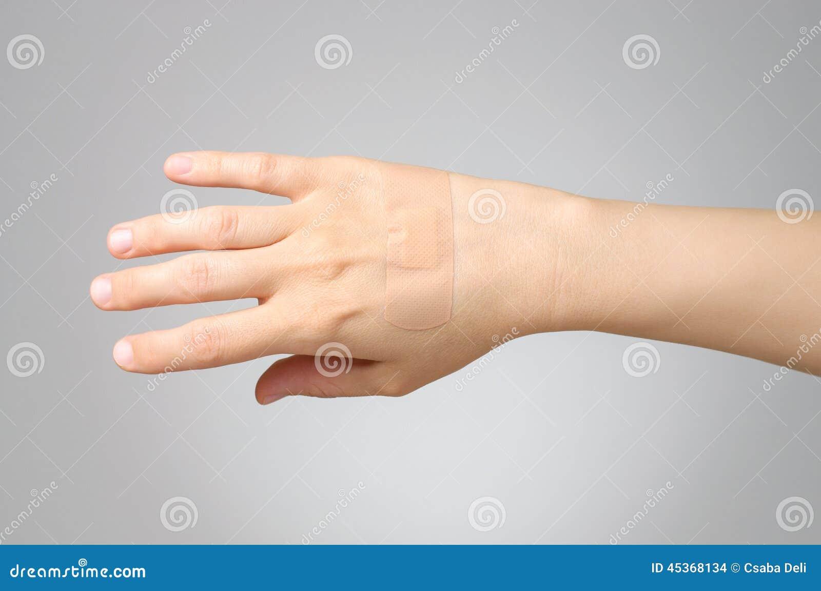 Plâtre sur la main femelle