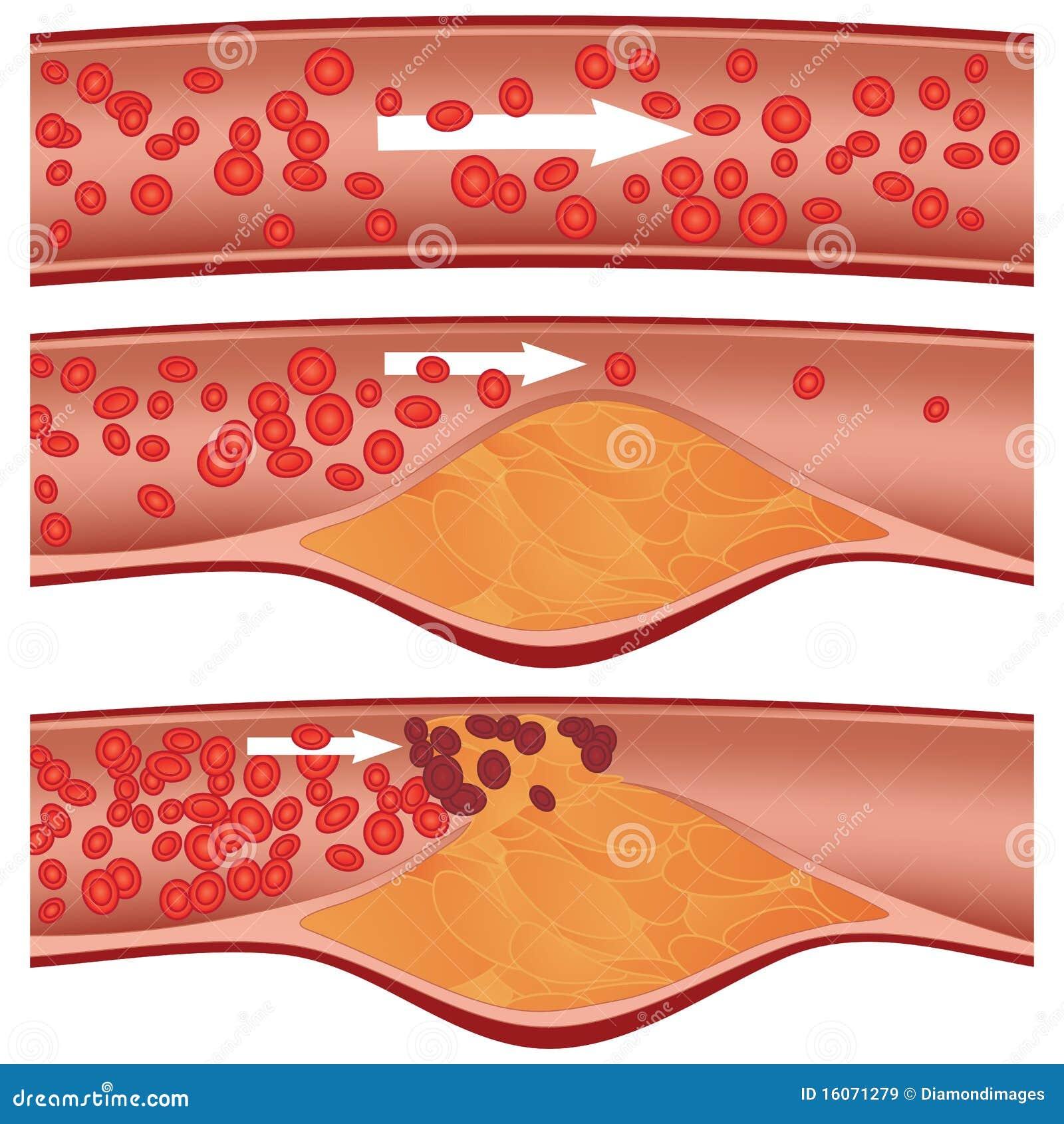 Placa del colesterol en arteria