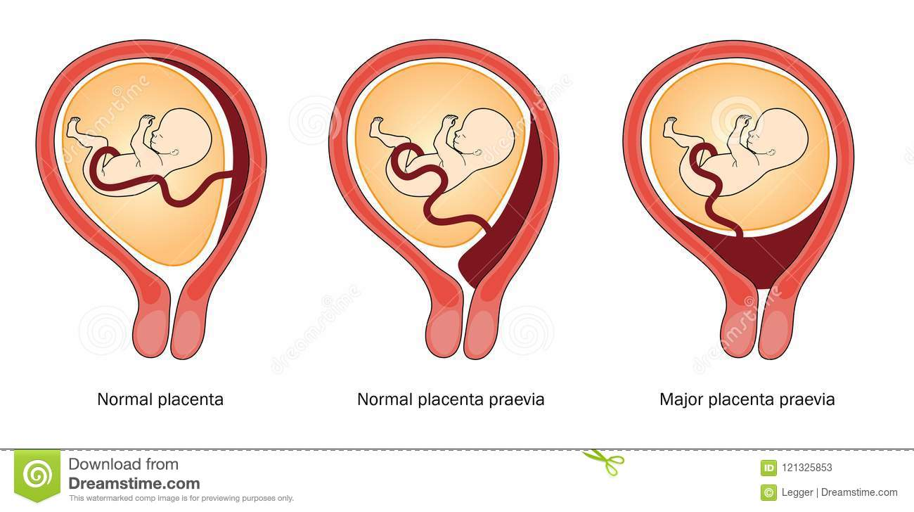 Placenta Cartoons  Illustrations   Vector Stock Images