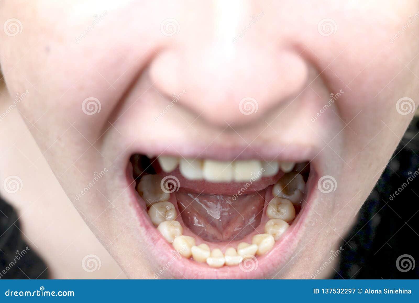 Plakieta pacjent, kamień Dentystyki traktowanie stomatologiczna plakieta, fachowa oralna higiena pojęcie krzywda dymić i
