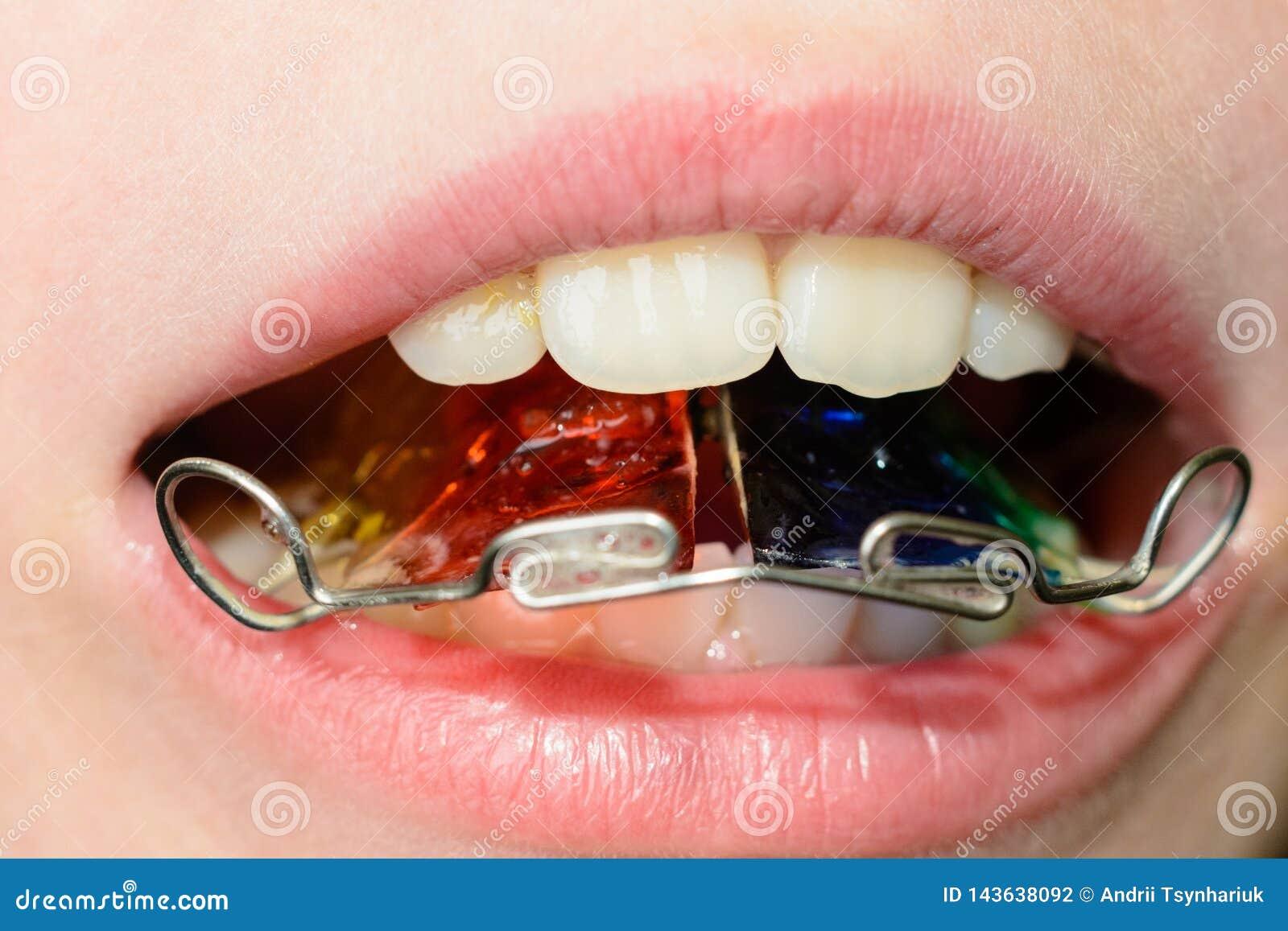 Plan rapproch? d une plaque de m?tal dans la bouche sur les dents d un petit gar?on