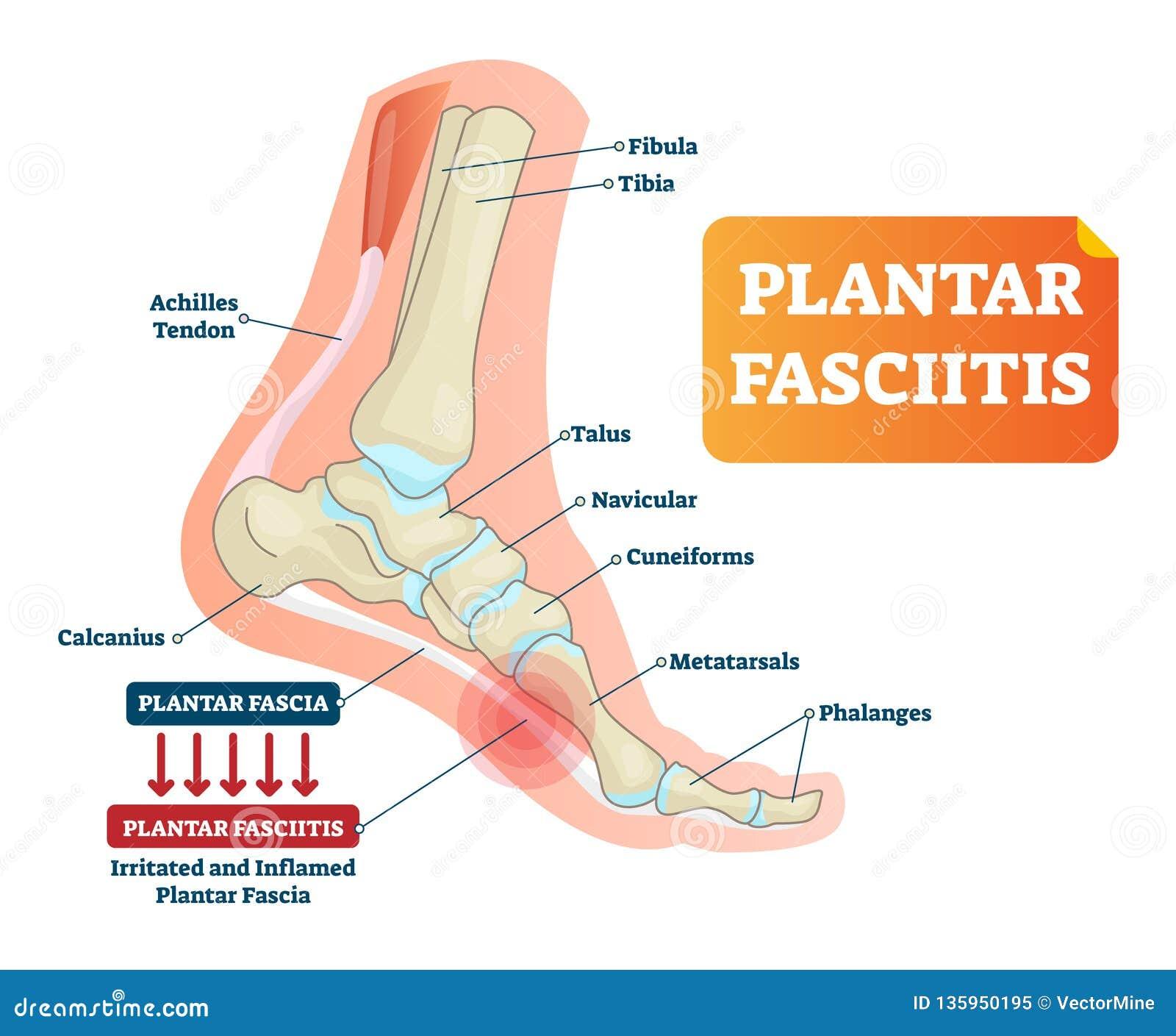plantar fasciitis vector illustration labeled human feet disorder Prosthetic Foot Diagram plantar fasciitis vector illustration labeled human feet disorder diagram
