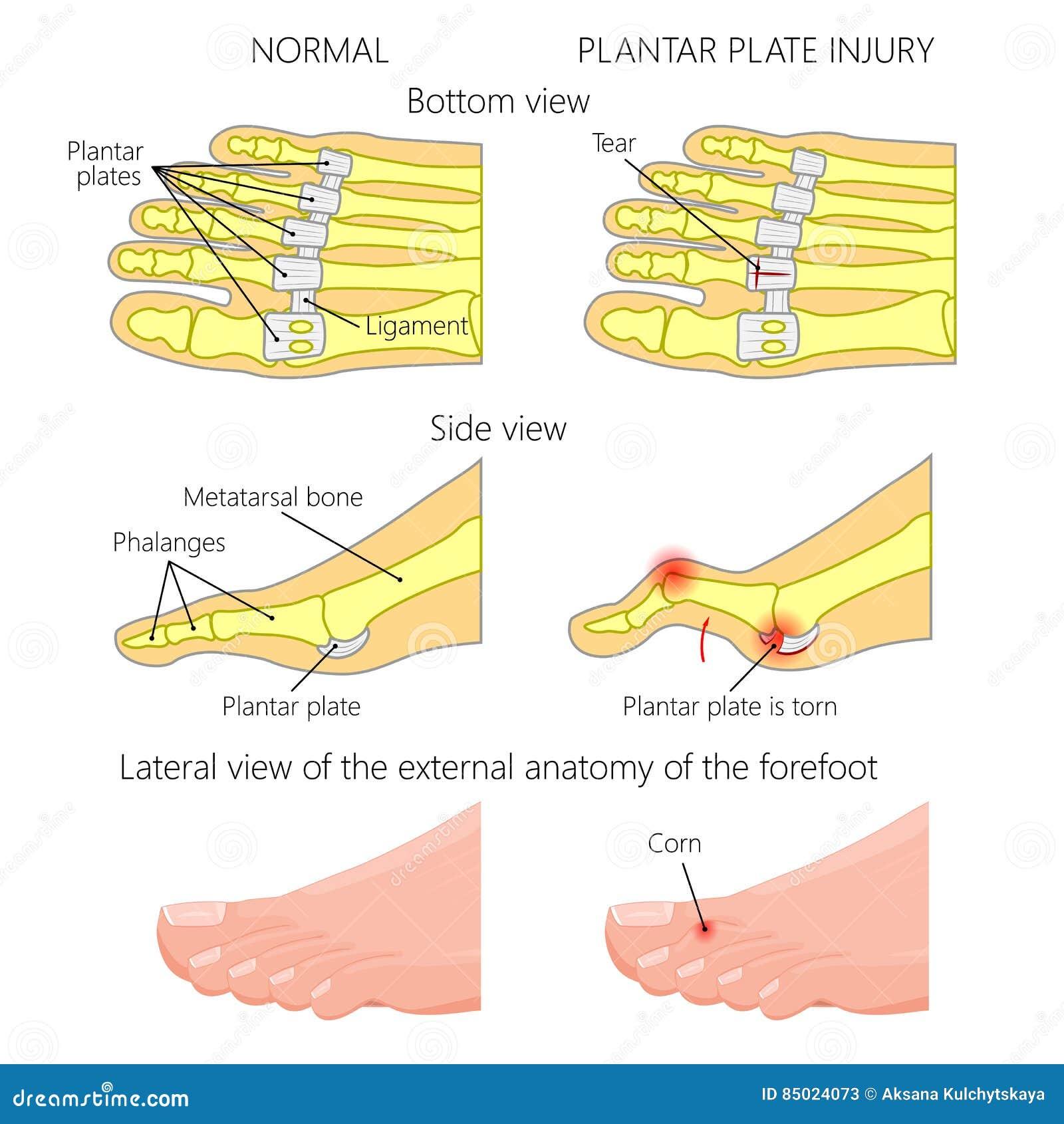 Big Toe Injury Cartoon Vector