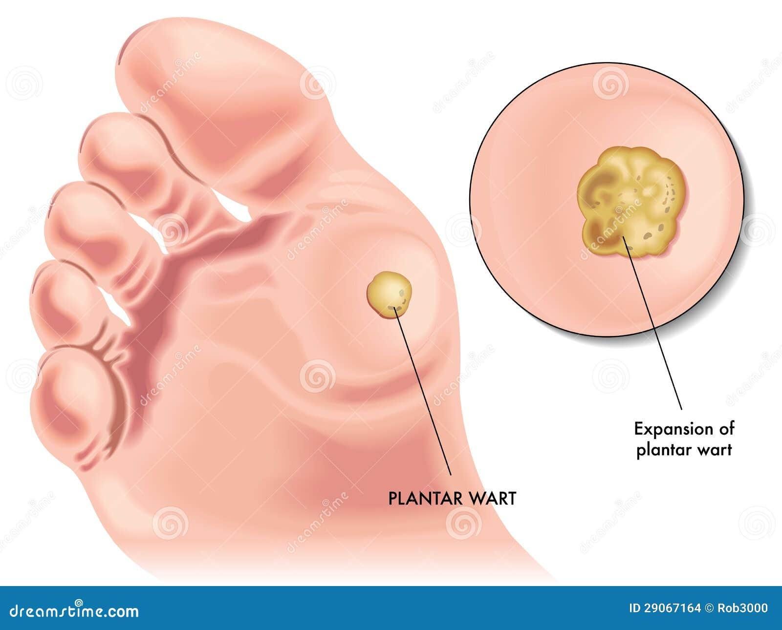 plantar wart stock vector illustration of skin epithelial 29067164 rh dreamstime com foot wart diagram plantar wart cross section diagram
