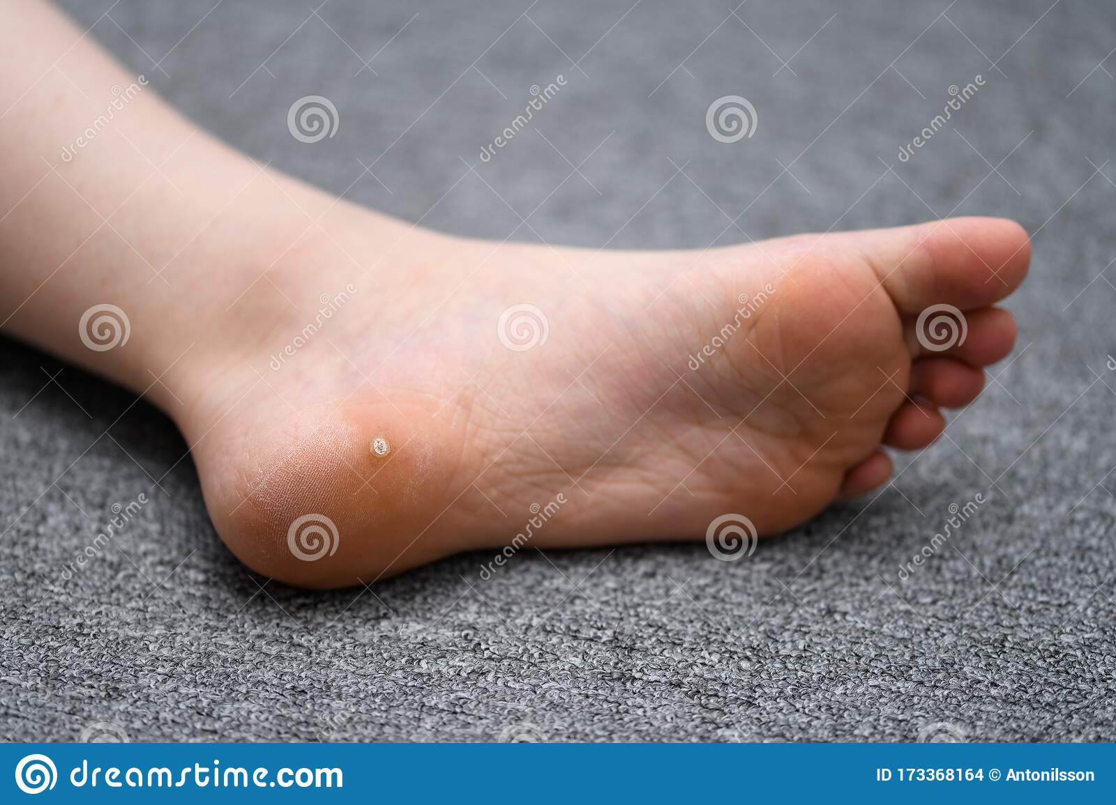 wart on foot baby