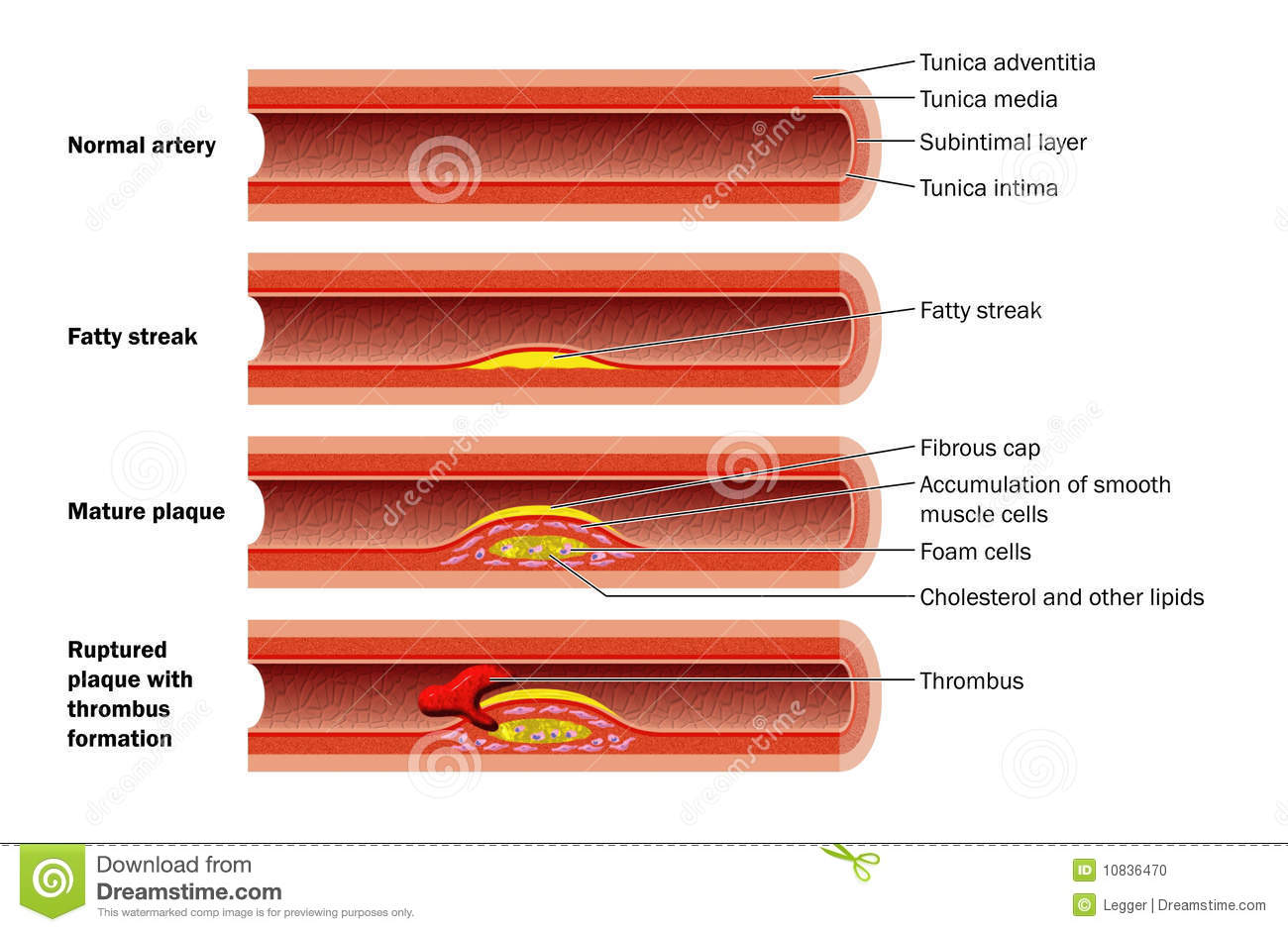cholesterol and relationship to plaque formation