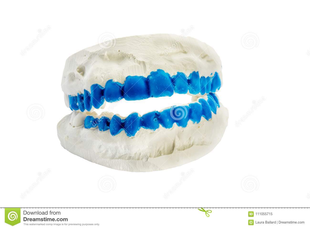 Plaster Dental Mold With Blue Painted Teeth Stock Image - Image of