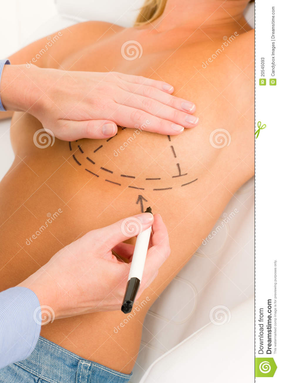 Plastic surgery doctor draw line patient breast stock photos image