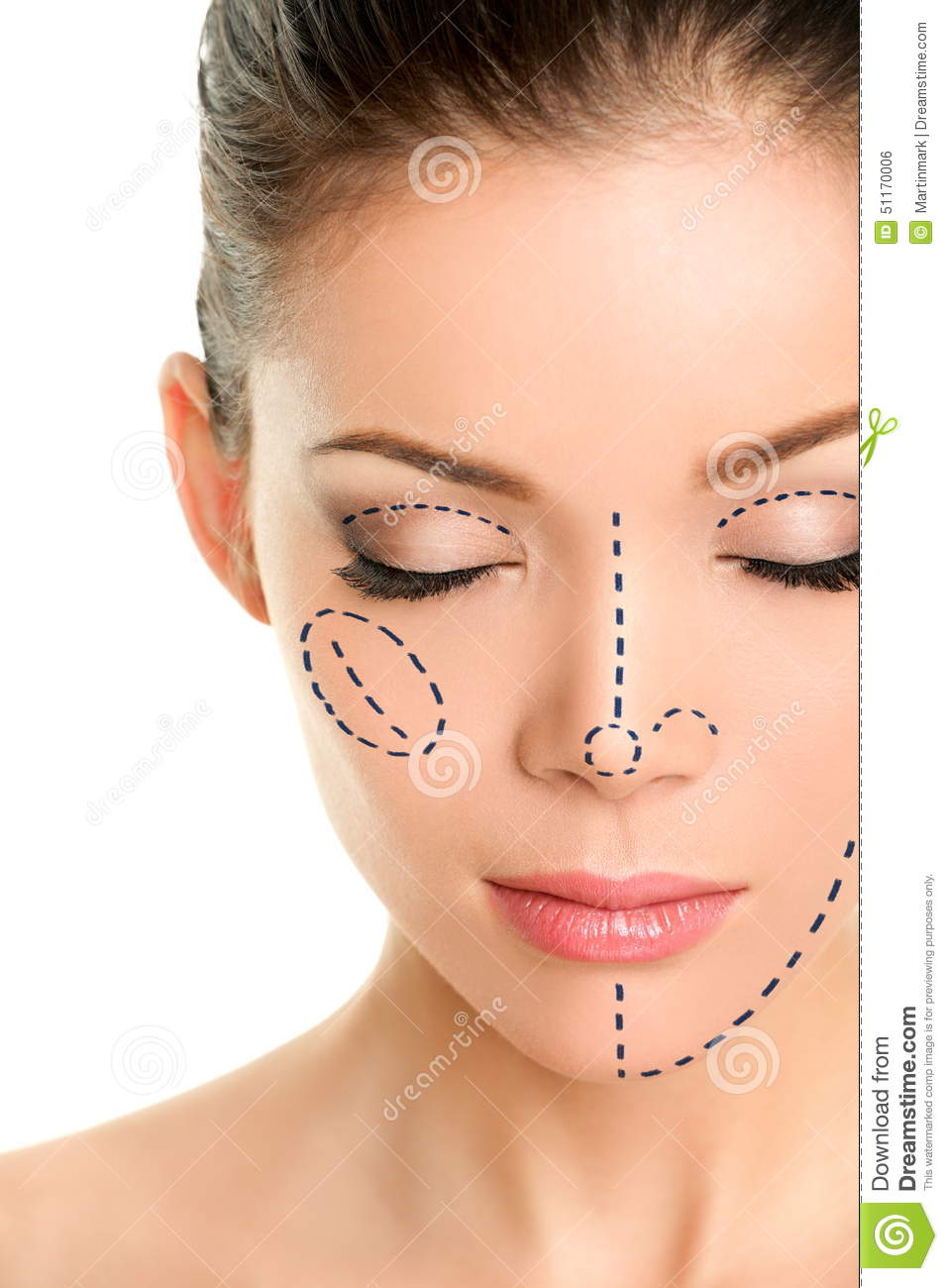 Plastic Surgery Lines On Asian Woman Face Stock Photo - Image of