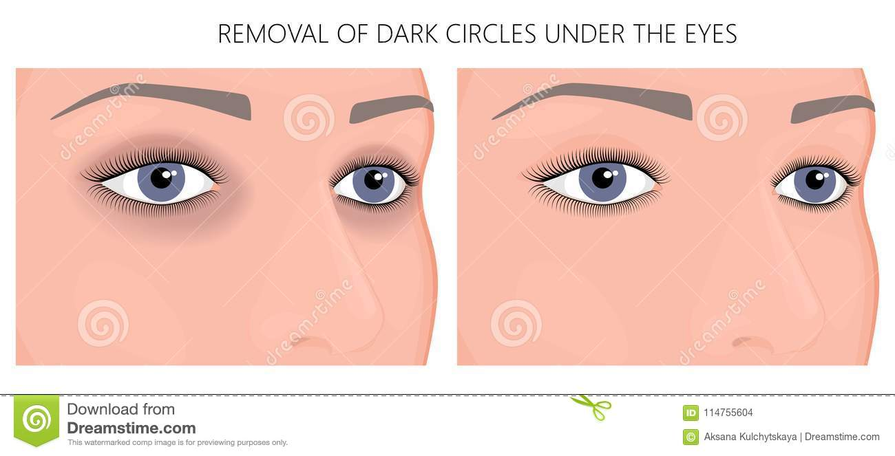 Plastic surgery_Removal of dark circles under the eyes