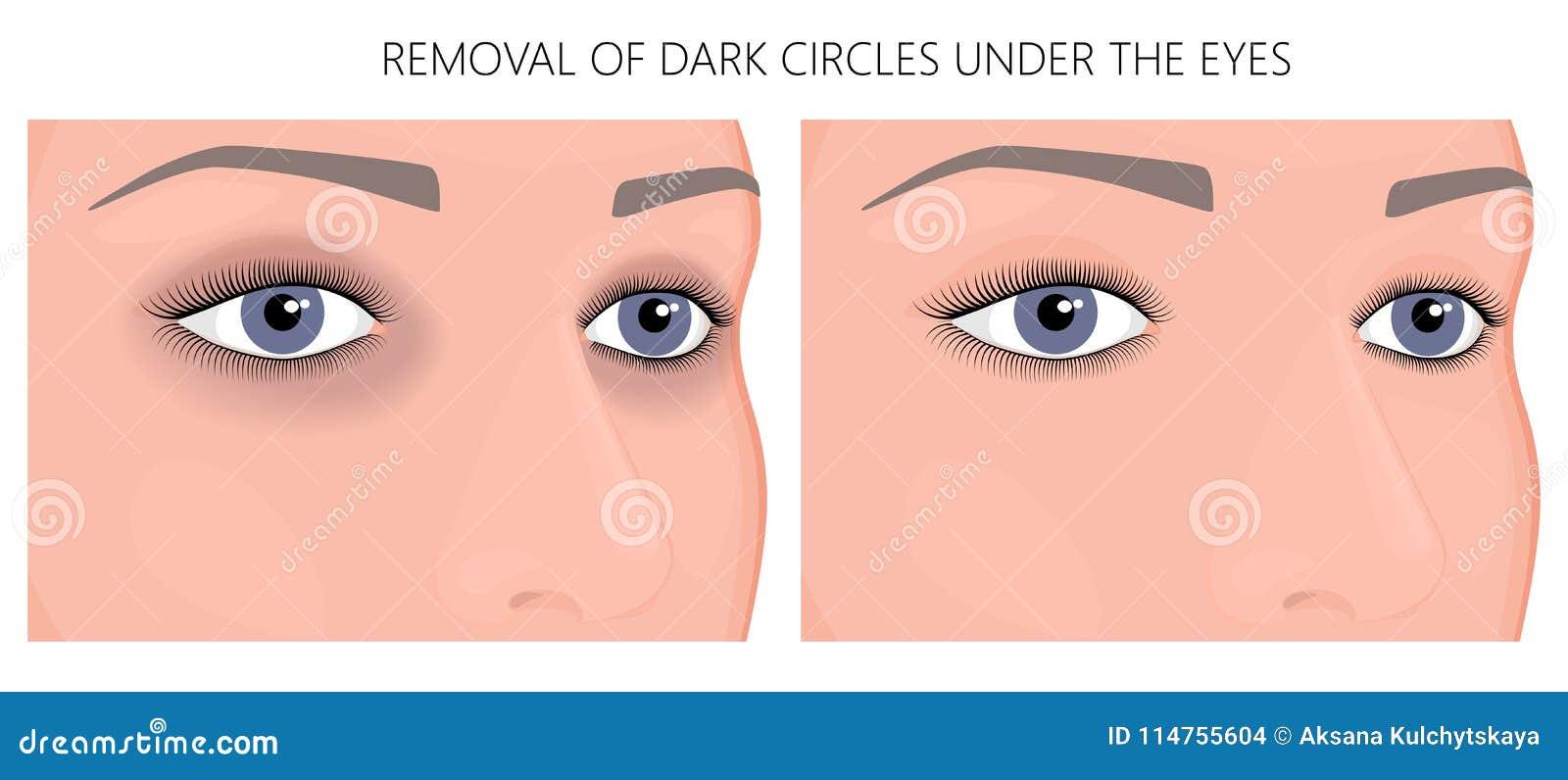 Plastikowy surgery_Removal ciemni okręgi pod oczami