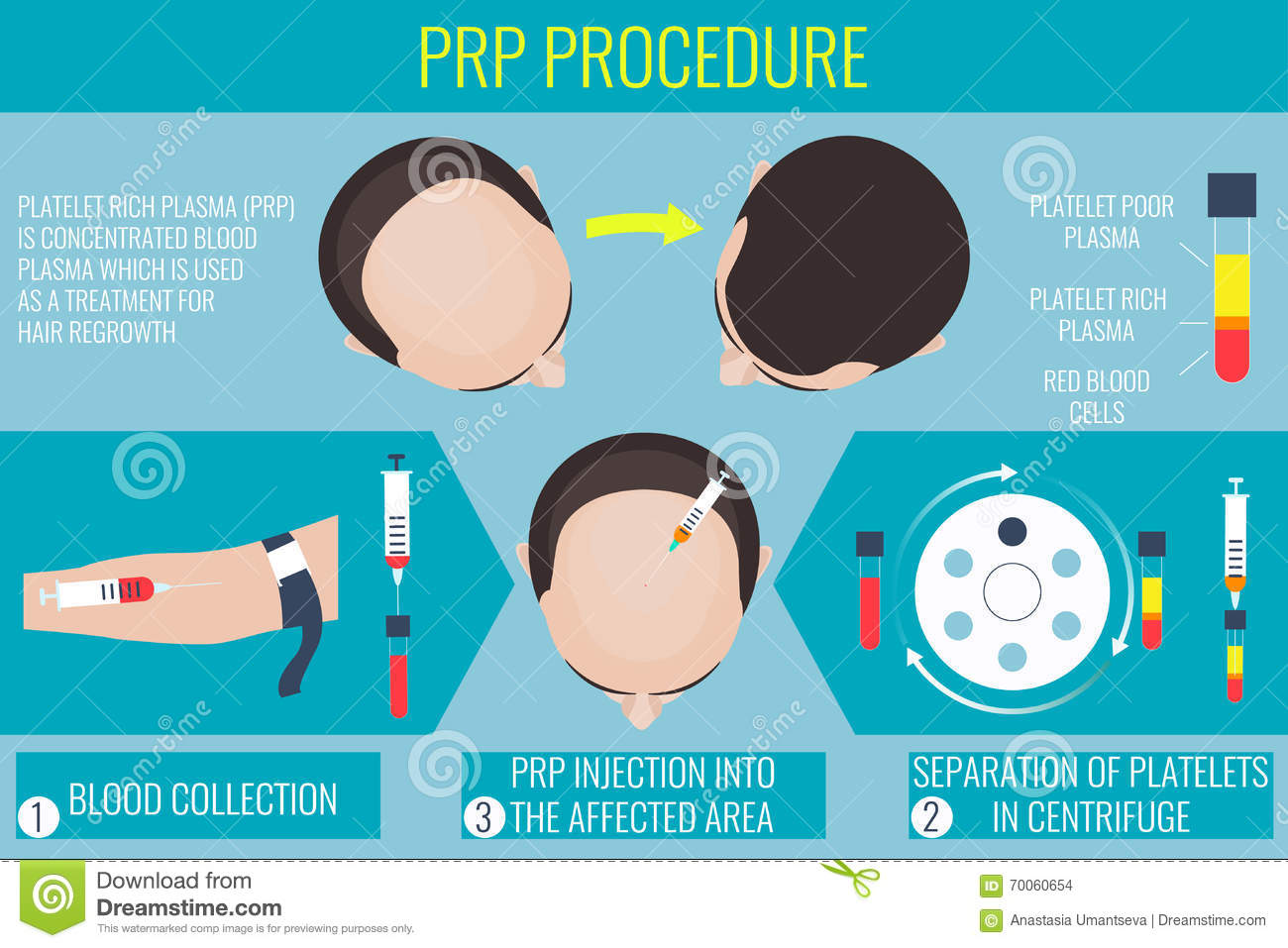 platelet rich plasma thesis Platelet rich plasma (prp) is a popular autologous biological therapy used for the treatment of this thesis is presented in a format that contains a journal publication as the central portion of the document (chapter 2.