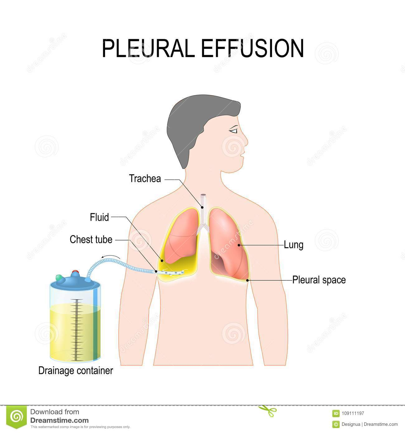 Pleural Effusion  Treatment Of Tension Hydrothorax Stock